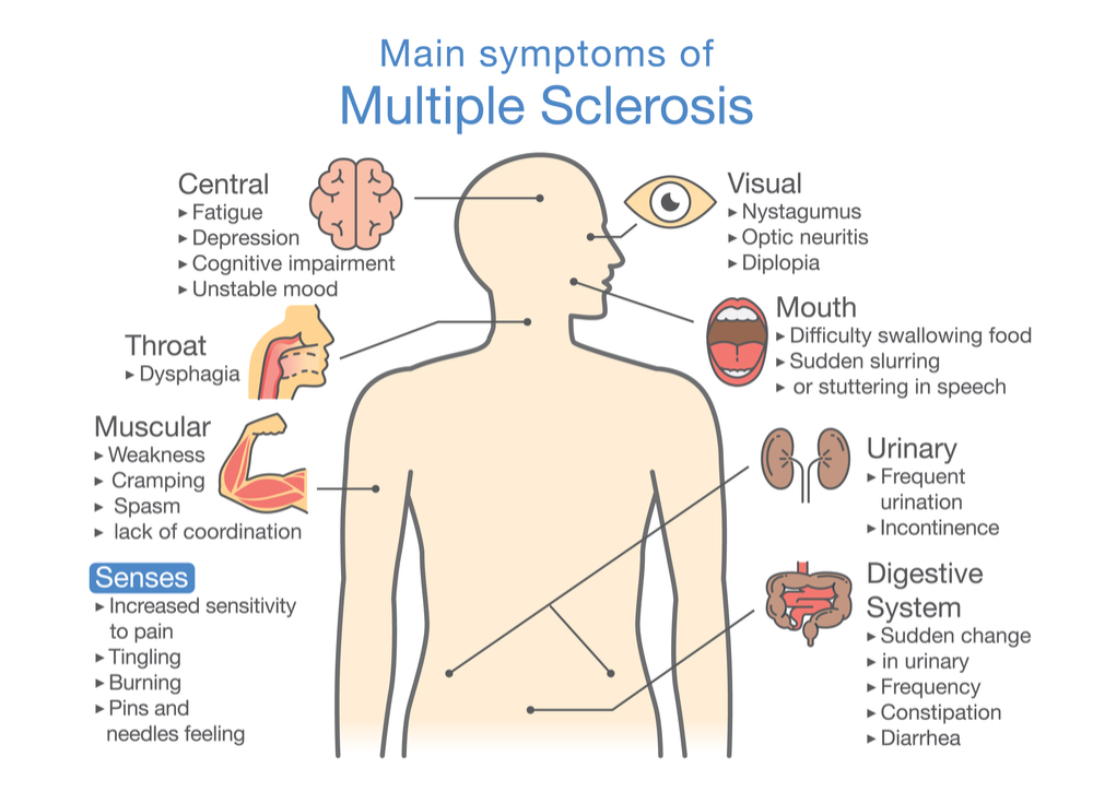 Visual diagram of the main symptoms of MS