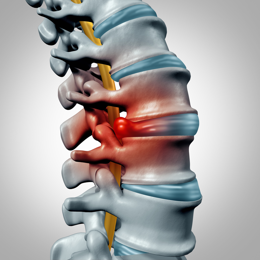 Herniated disc concept and spinal pain graphic