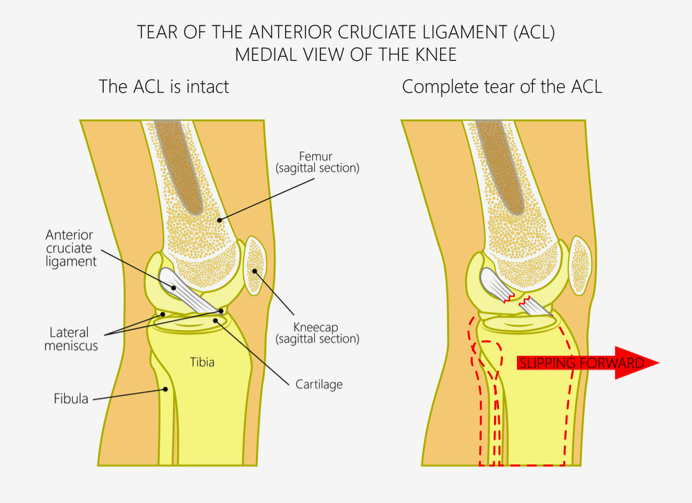 Vector graphic showing the comparison of an intact ACL and a complete tear of the ACL